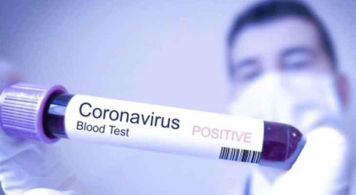 الصحة في إيران: تسجيل أكثر من 21 ألف إصابة جديدة بفيروس كورونا
